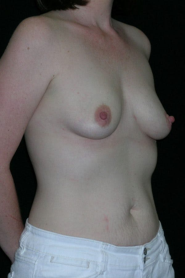 Breast Augmentation Gallery - Patient 23533252 - Image 5