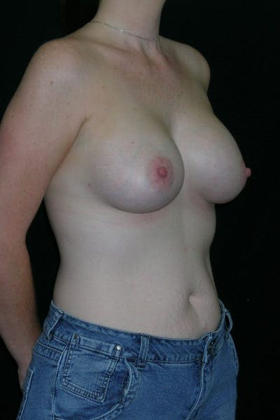 Breast Augmentation Gallery - Patient 23533252 - Image 6