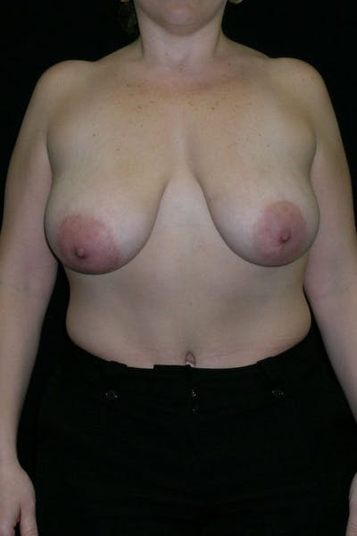 Breast Augmentation Gallery - Patient 23533261 - Image 1