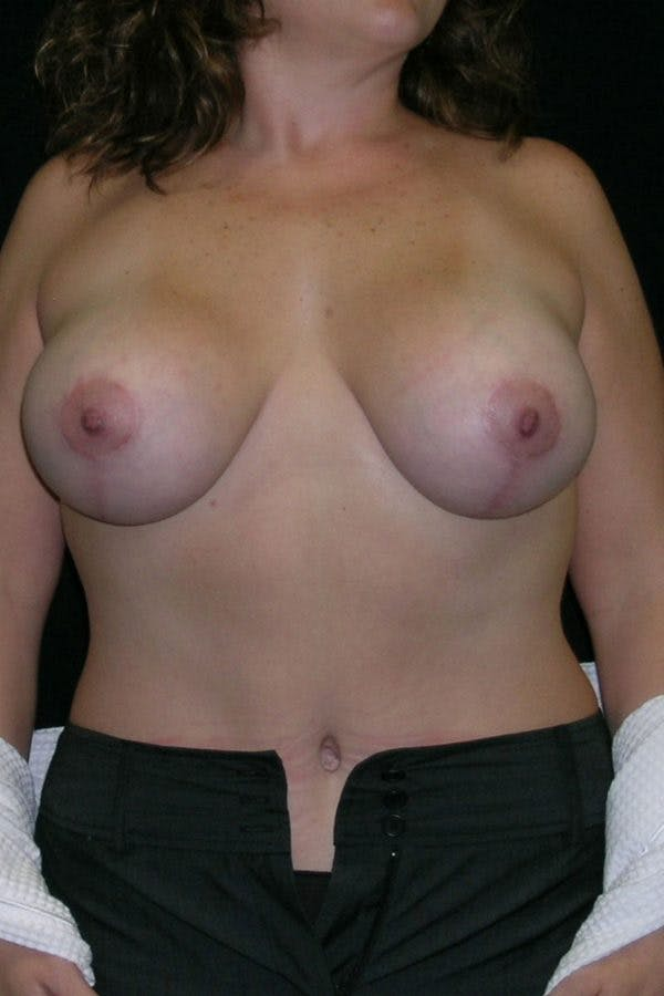 Breast Augmentation Gallery - Patient 23533261 - Image 2