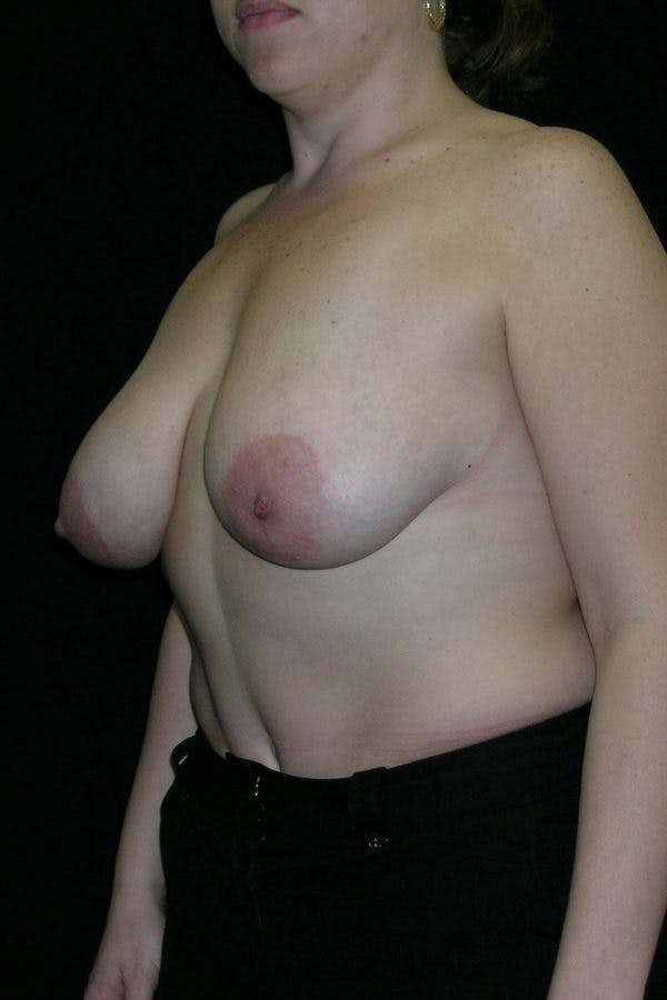 Breast Augmentation Gallery - Patient 23533261 - Image 3