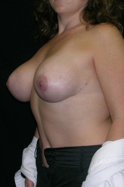 Breast Augmentation Gallery - Patient 23533261 - Image 4