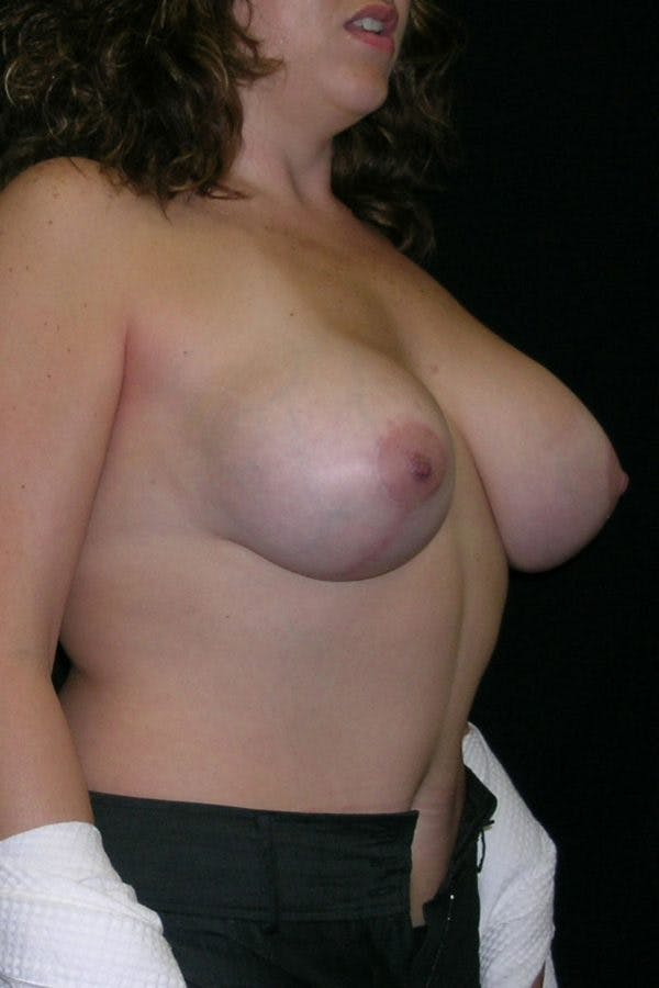 Breast Augmentation Gallery - Patient 23533261 - Image 6