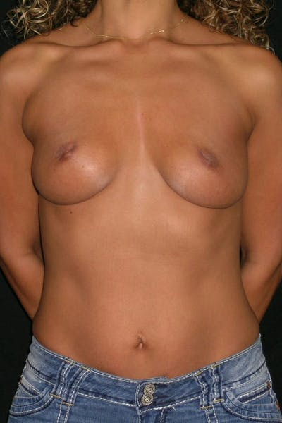 Breast Augmentation Gallery - Patient 23533264 - Image 1