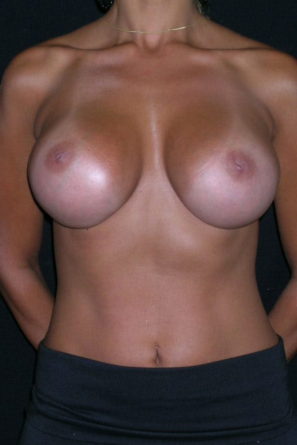 Breast Augmentation Gallery - Patient 23533264 - Image 2