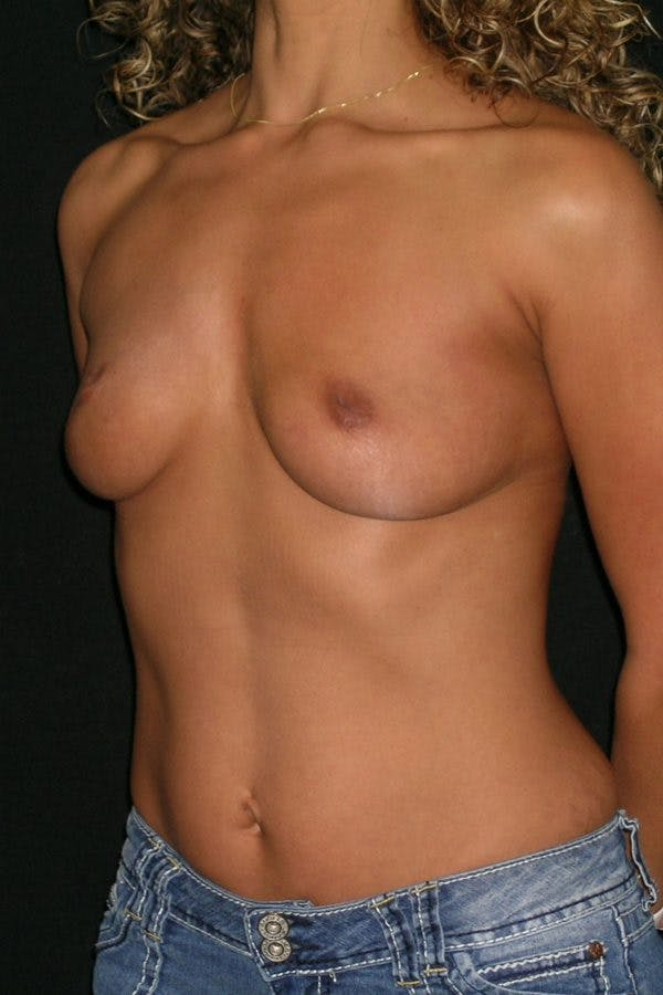 Breast Augmentation Gallery - Patient 23533264 - Image 3