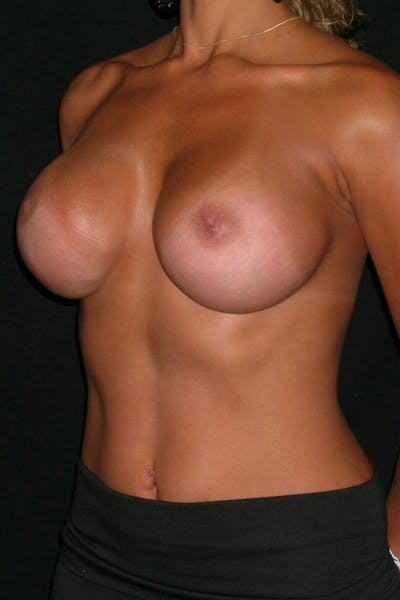 Breast Augmentation Gallery - Patient 23533264 - Image 4