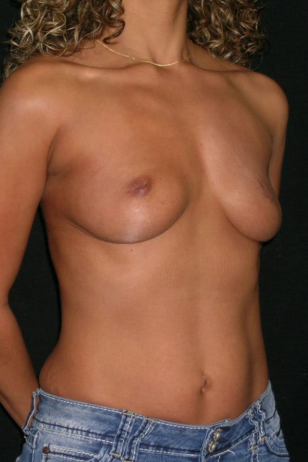 Breast Augmentation Gallery - Patient 23533264 - Image 5