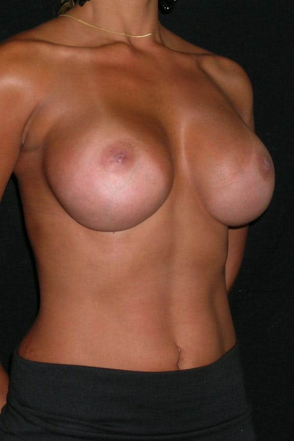 Breast Augmentation Gallery - Patient 23533264 - Image 6