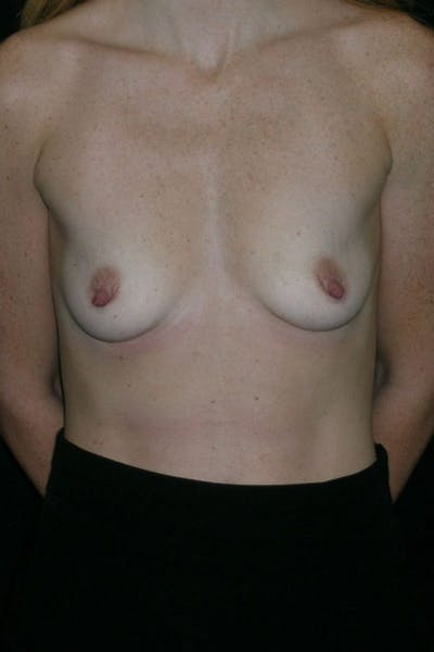 Breast Augmentation Gallery - Patient 23533265 - Image 1