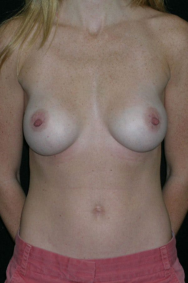 Breast Augmentation Gallery - Patient 23533265 - Image 2
