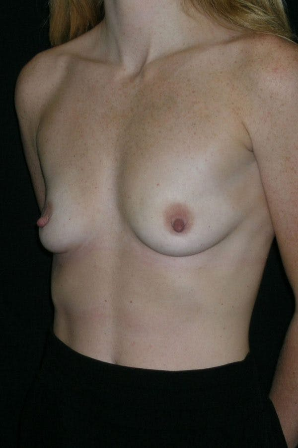 Breast Augmentation Gallery - Patient 23533265 - Image 3
