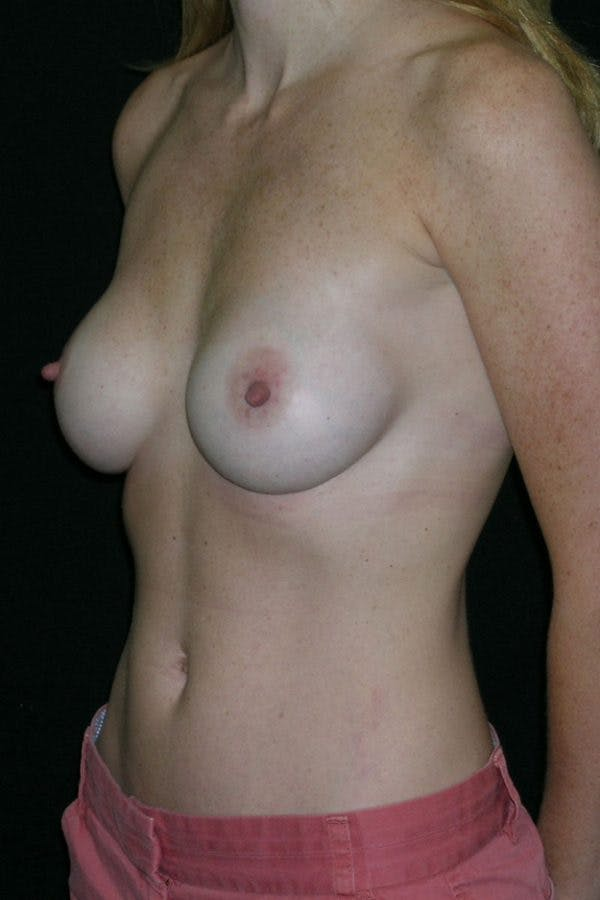 Breast Augmentation Gallery - Patient 23533265 - Image 4