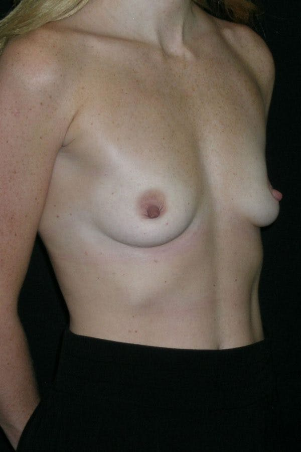 Breast Augmentation Gallery - Patient 23533265 - Image 5