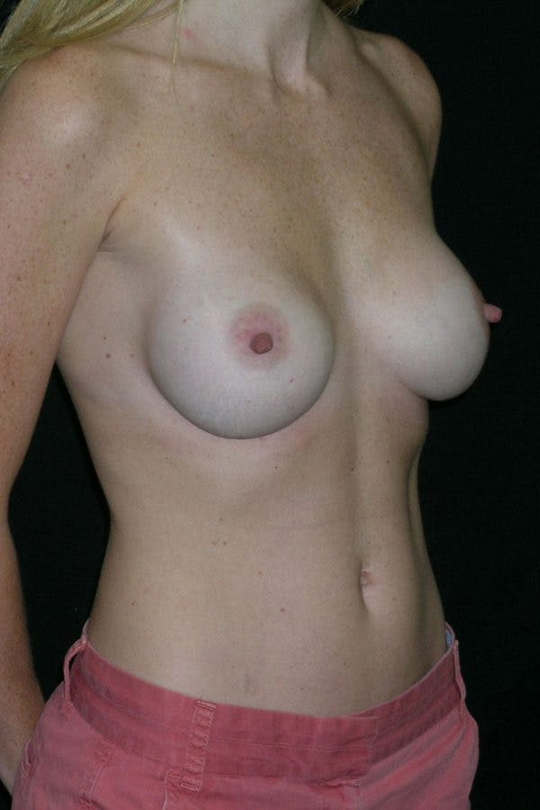 Breast Augmentation Gallery - Patient 23533265 - Image 6