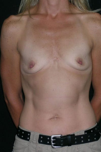 Breast Augmentation Gallery - Patient 23533267 - Image 1