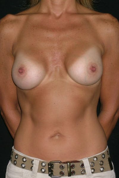 Breast Augmentation Gallery - Patient 23533267 - Image 2