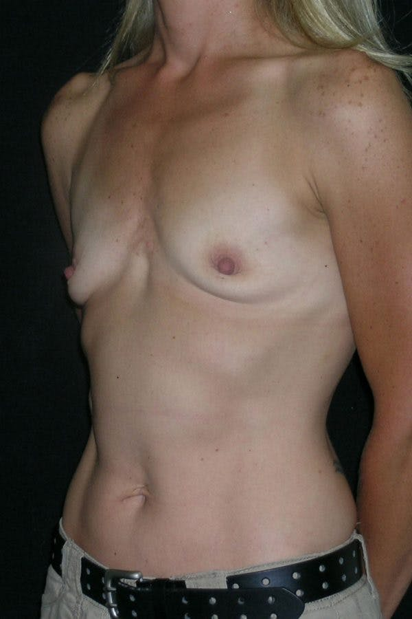 Breast Augmentation Gallery - Patient 23533267 - Image 3