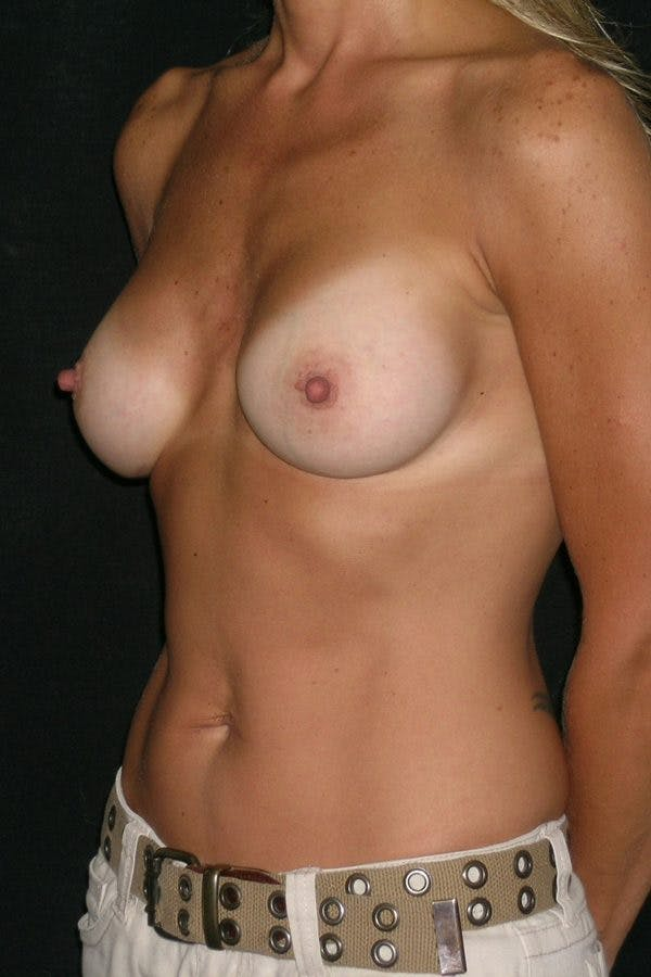 Breast Augmentation Gallery - Patient 23533267 - Image 4