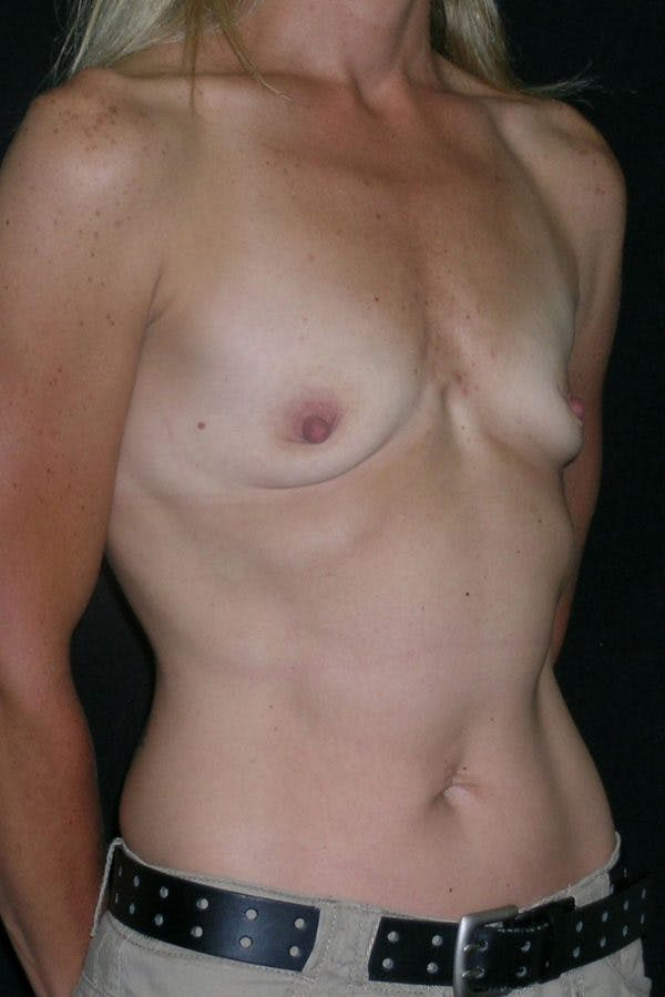 Breast Augmentation Gallery - Patient 23533267 - Image 5