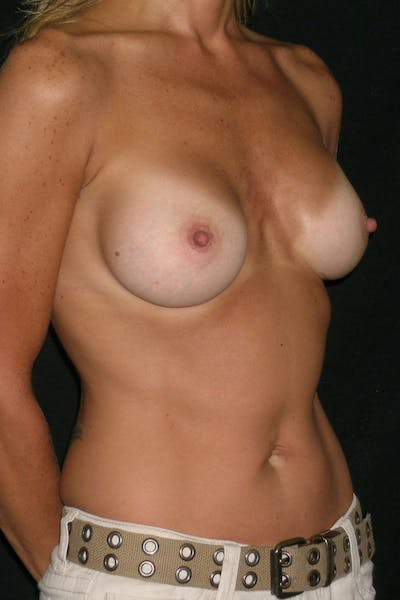 Breast Augmentation Gallery - Patient 23533267 - Image 6