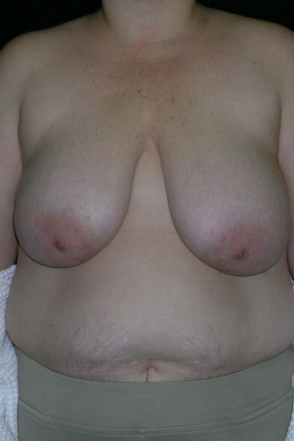 Breast Augmentation Gallery - Patient 23533273 - Image 1