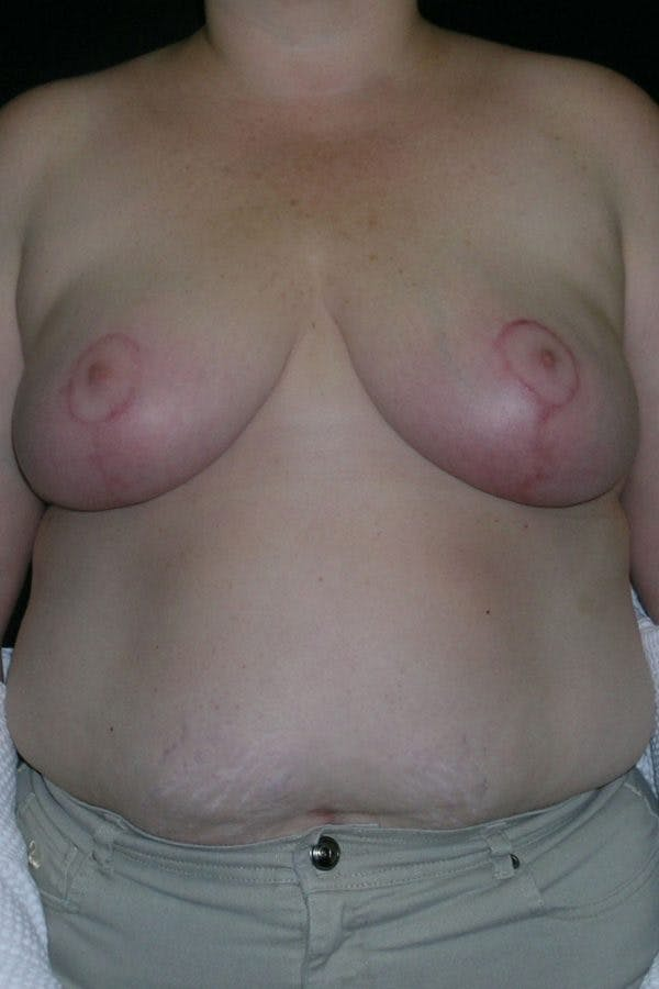 Breast Augmentation Gallery - Patient 23533273 - Image 2