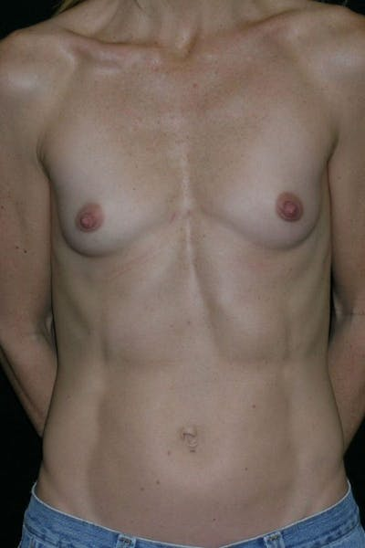 Breast Augmentation Gallery - Patient 23533275 - Image 1