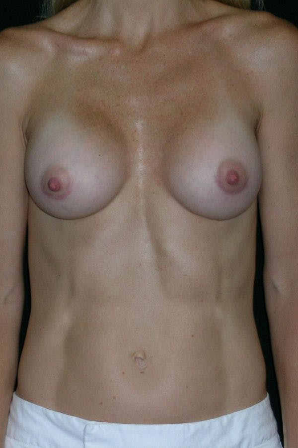 Breast Augmentation Gallery - Patient 23533275 - Image 2