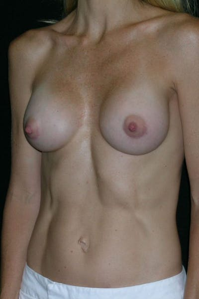 Breast Augmentation Gallery - Patient 23533275 - Image 4