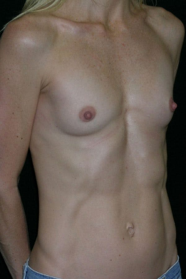 Breast Augmentation Gallery - Patient 23533275 - Image 5