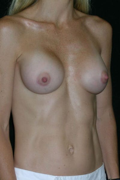 Breast Augmentation Gallery - Patient 23533275 - Image 6