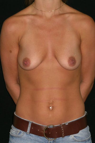 Breast Augmentation Gallery - Patient 23533277 - Image 1