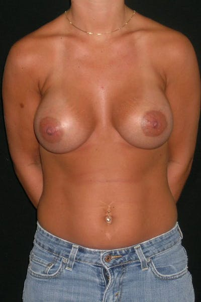 Breast Augmentation Gallery - Patient 23533277 - Image 2