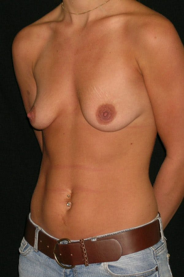 Breast Augmentation Gallery - Patient 23533277 - Image 3