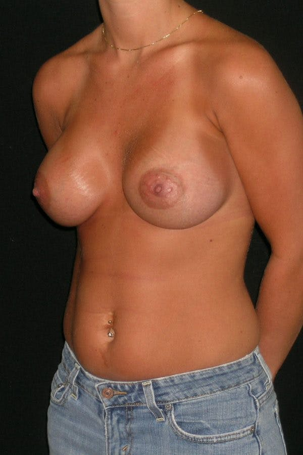Breast Augmentation Gallery - Patient 23533277 - Image 4