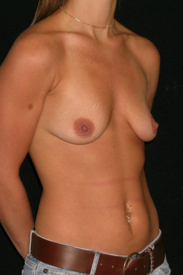 Breast Augmentation Gallery - Patient 23533277 - Image 5