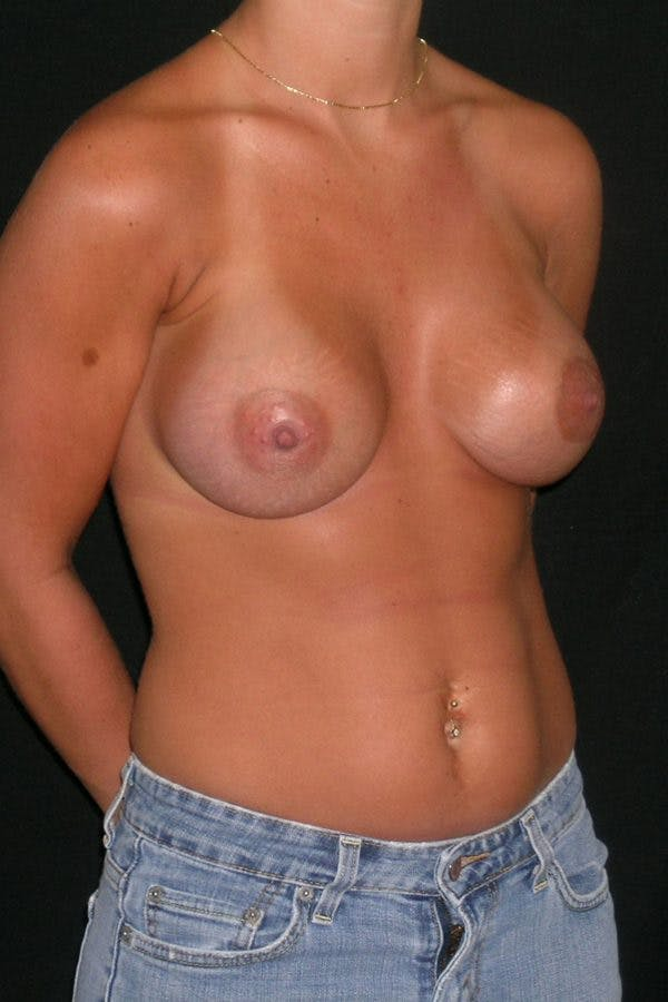Breast Augmentation Gallery - Patient 23533277 - Image 6