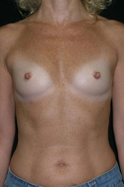 Breast Augmentation Gallery - Patient 23533294 - Image 1