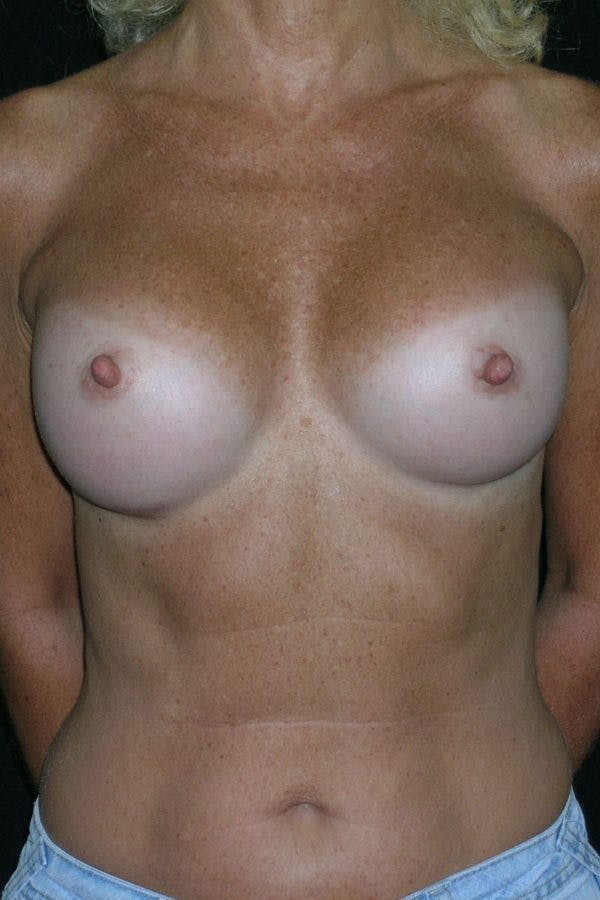 Breast Augmentation Gallery - Patient 23533294 - Image 2