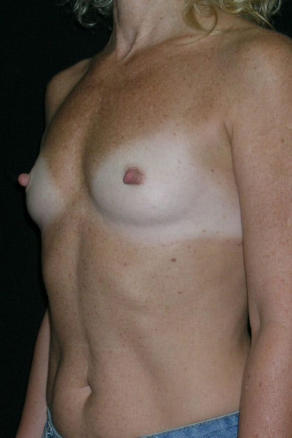 Breast Augmentation Gallery - Patient 23533294 - Image 3