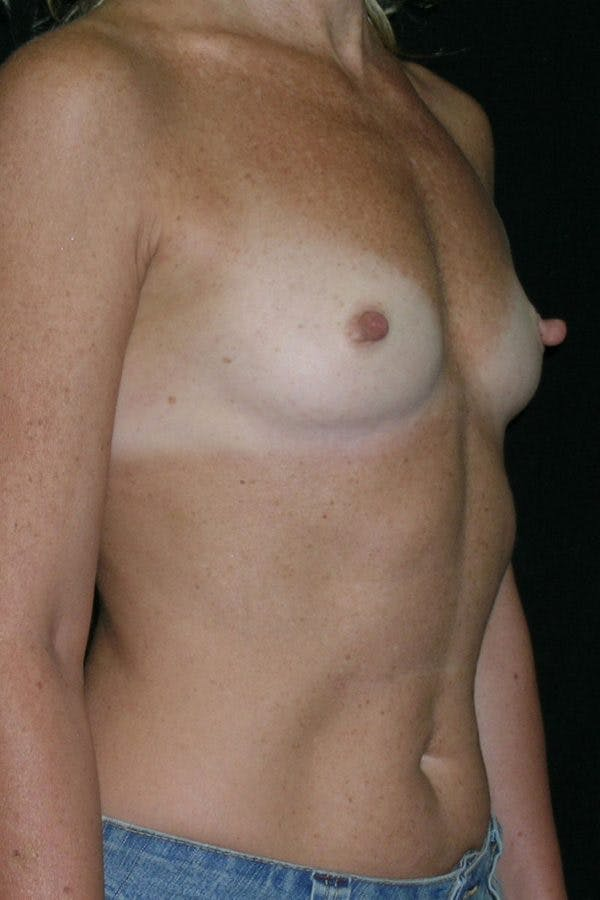 Breast Augmentation Gallery - Patient 23533294 - Image 5