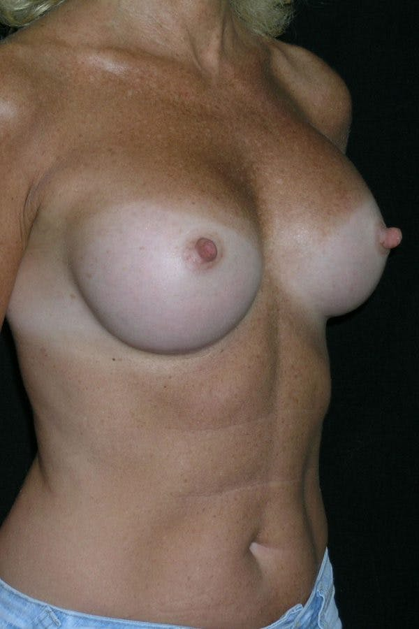 Breast Augmentation Gallery - Patient 23533294 - Image 6