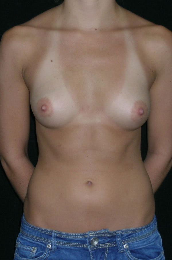 Breast Augmentation Gallery - Patient 23533304 - Image 1