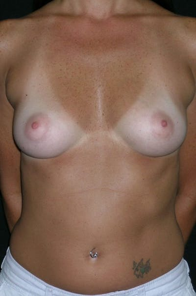 Breast Augmentation Gallery - Patient 23533318 - Image 1