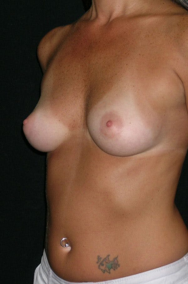 Breast Augmentation Gallery - Patient 23533318 - Image 3