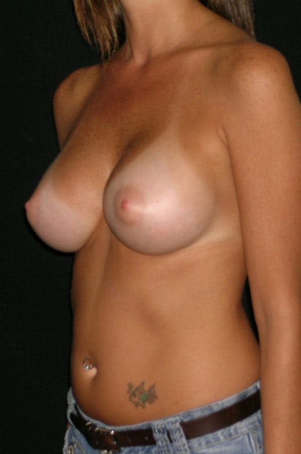 Breast Augmentation Gallery - Patient 23533318 - Image 4