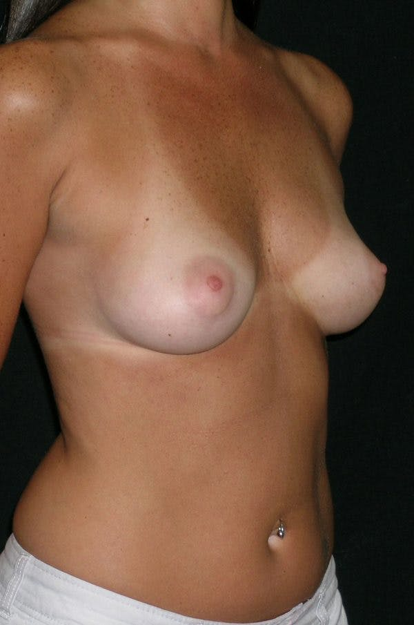 Breast Augmentation Gallery - Patient 23533318 - Image 5