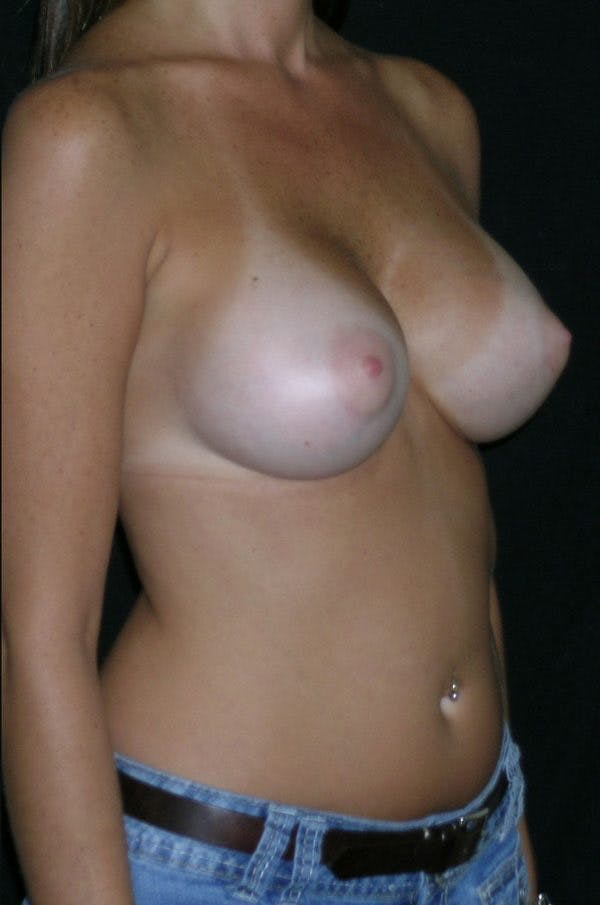 Breast Augmentation Gallery - Patient 23533318 - Image 6