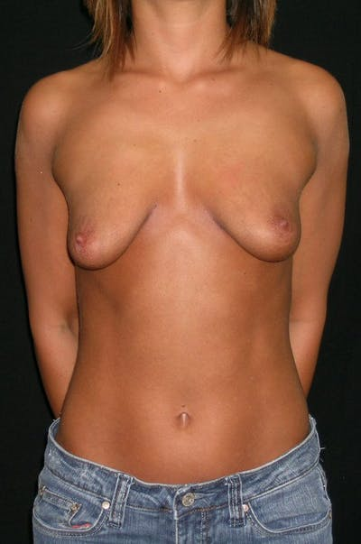 Breast Augmentation Gallery - Patient 23533323 - Image 1